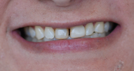 porcelain veneers sherwood or