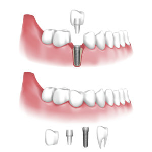 Dental Implant | Sherwood, Oregon